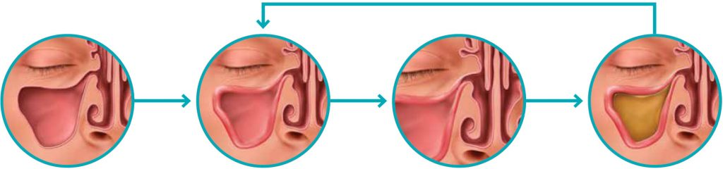 A graphic that depicts what sinusitis is